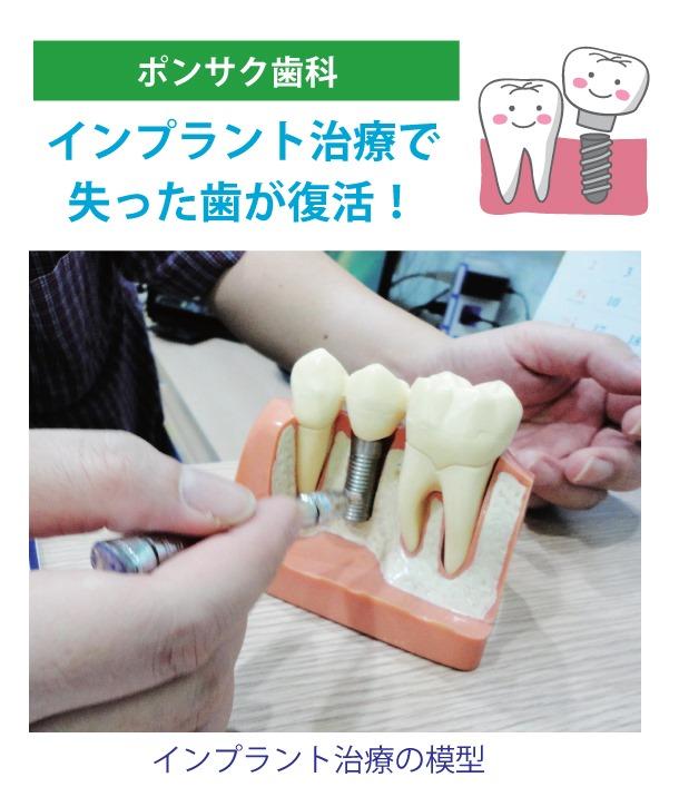 インプラント治療で 失った歯が復活!