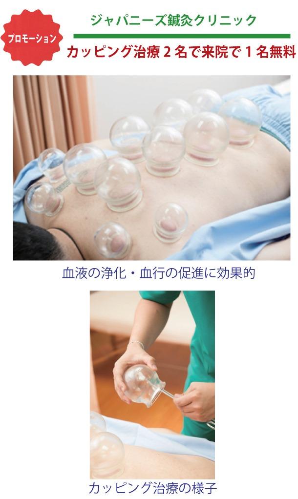 「ジャパニーズ鍼灸クリニック」の健康コラム:吸い玉もしくはカッピングとも呼ばれる治療