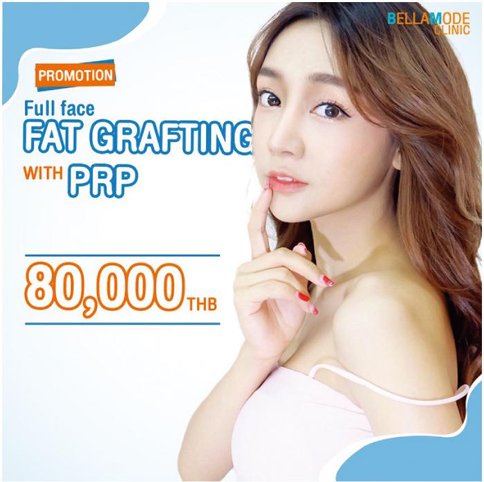 脂肪移植とPRPは80,000バーツ