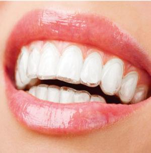 輝く白い歯を手に入れる