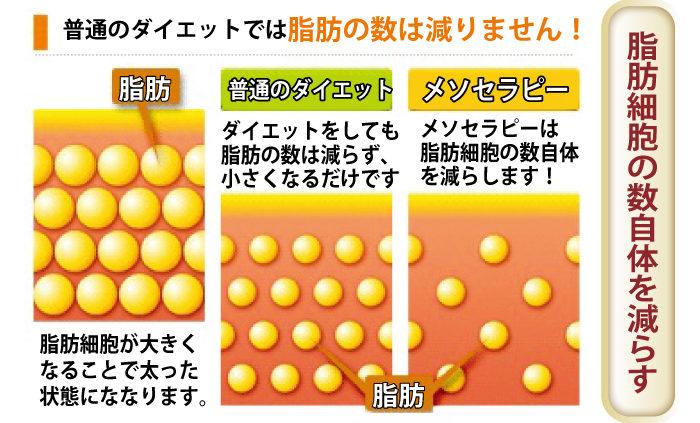 「エーリサクリニック」脂肪細胞の数自体を減らす